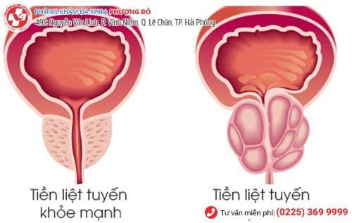 6 dấu hiệu nhận biết viêm tuyến tiền liệt bạn không nên bỏ qua