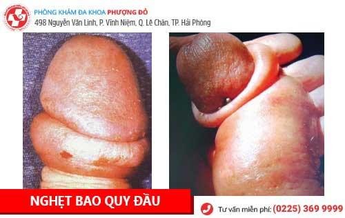 hình ảnh trước và sau khi cắt bao quy đầu