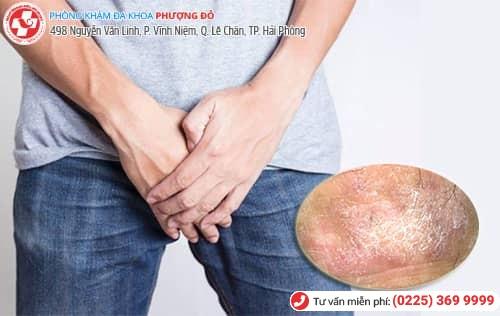 5 cách đơn giản cắt đứt cơn ngứa bìu tinh hoàn