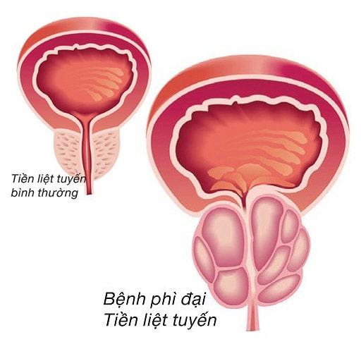 Phì đại tiền liệt tuyến uống thuốc gì để giảm kích thước khối u?