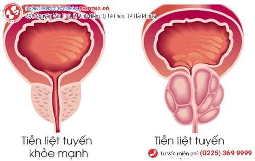6 dấu hiệu nhận biết viêm tuyến tiền liệt ở nam giới